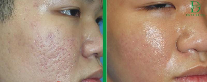 Sẹo rỗ được lấp đầy khi đưa dưỡng chất xuống, kích thích tăng sinh Collagen, Eslatin