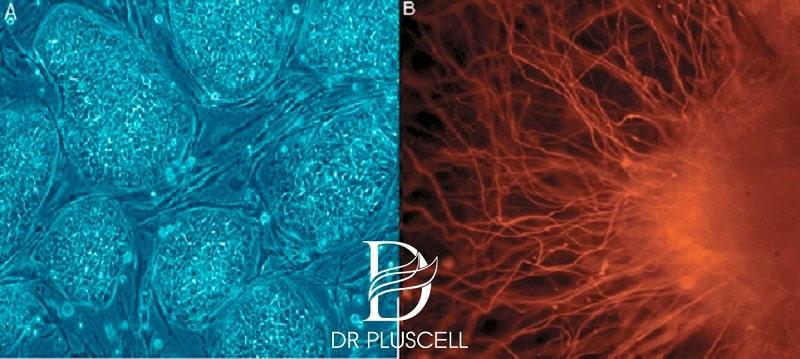 tế bào gốc phôi thai