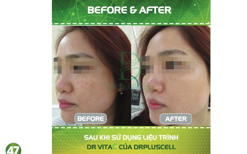 before after dr vita c