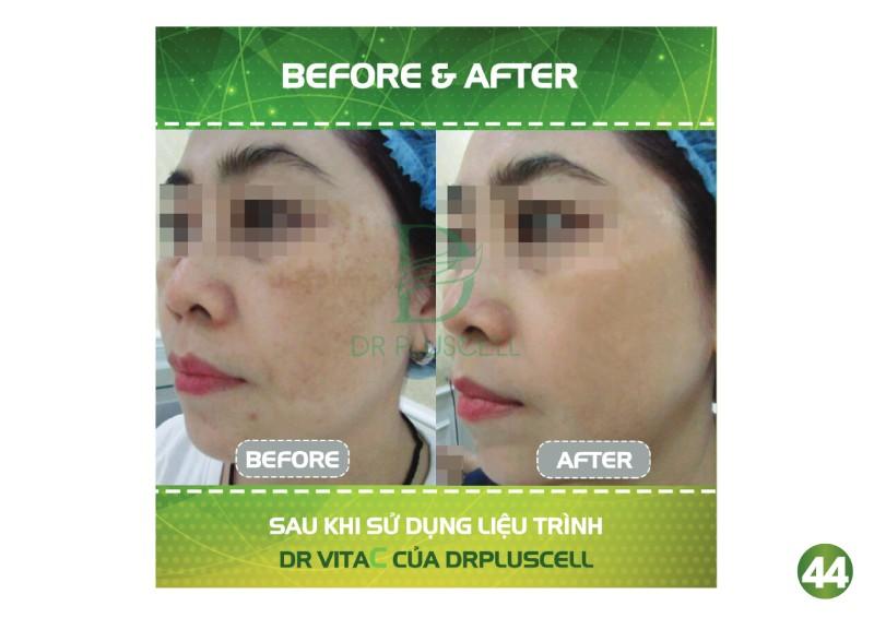 Hiệu quả của Dr Vita C