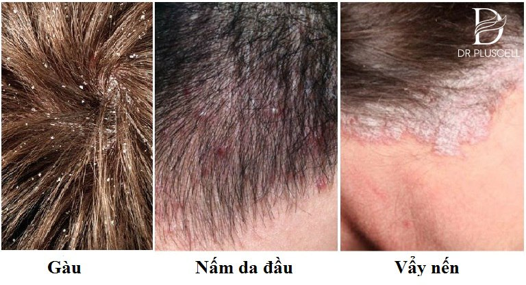 Phân biệt nấm da đầu
