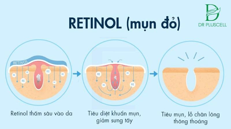 retinol dưỡng da