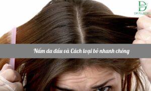trị nấm da đầu