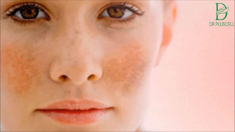 Nám da và tàn nhang gây mất thẩm mỹ