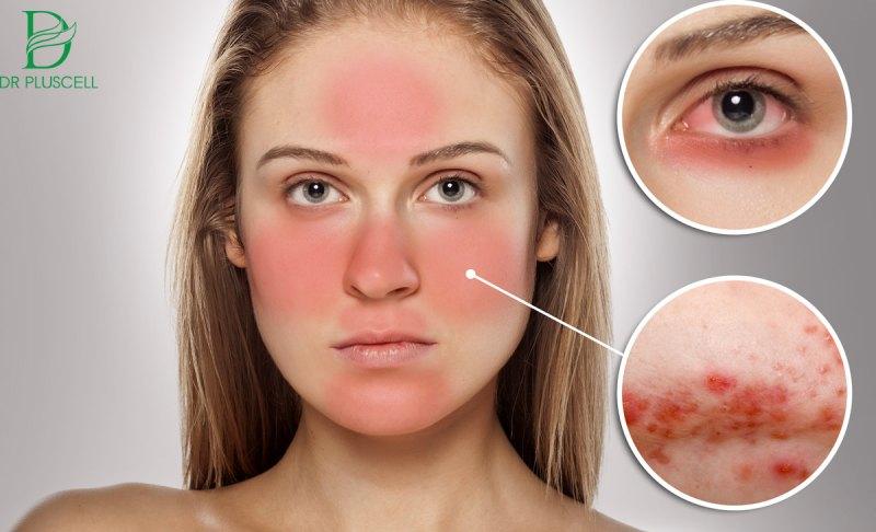 Cách điều trị da nhiễm Corticod