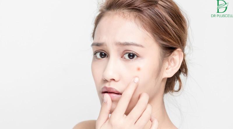 Lưu ý khi sử dụng sữa rửa mặt cho da mụn