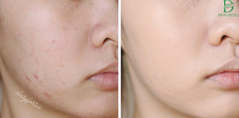 Bạn nên lựa chọn loại phấn nước Cushion phù hợp với làn da của mình