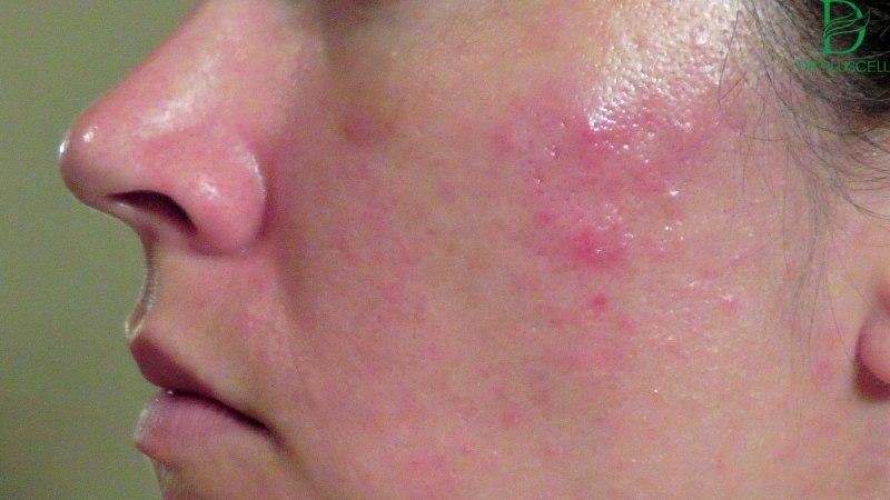 Peel da bị đỏ do da dị ứng với hóa chất