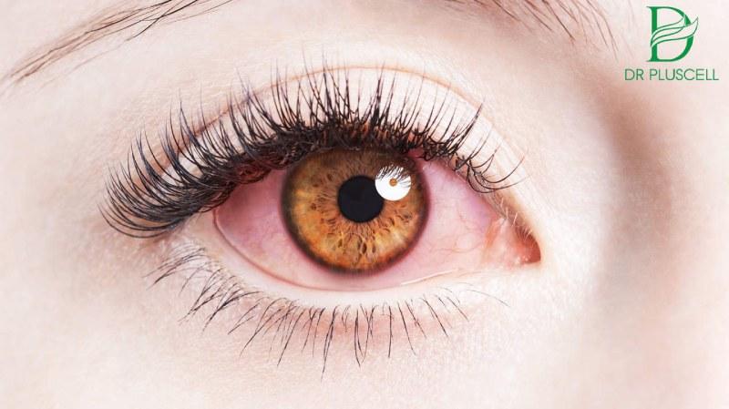 Không tẩy trang trước khi đi ngủ gây đau mắt