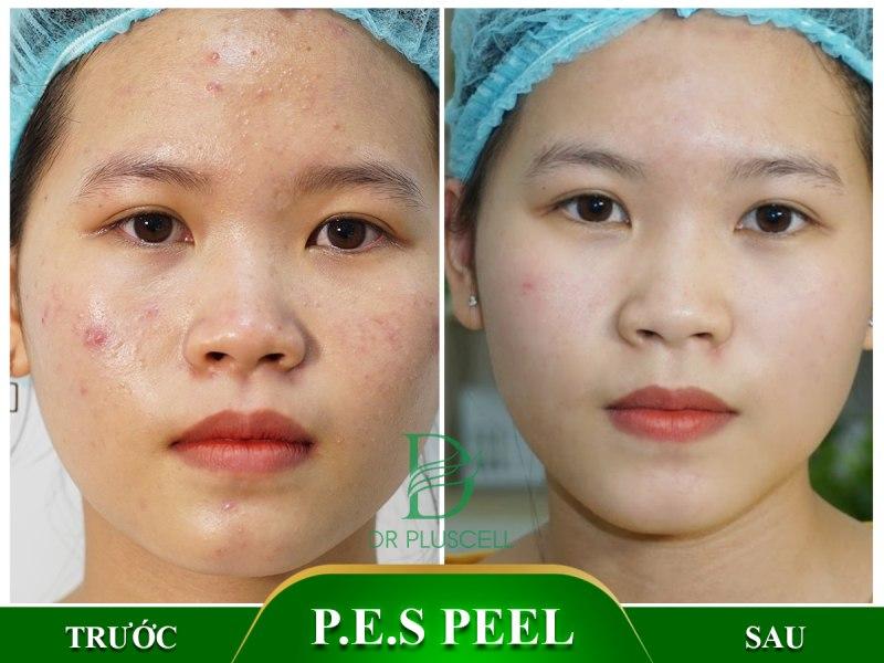 Hiệu quả của peel da