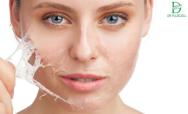 Lột da và thay da