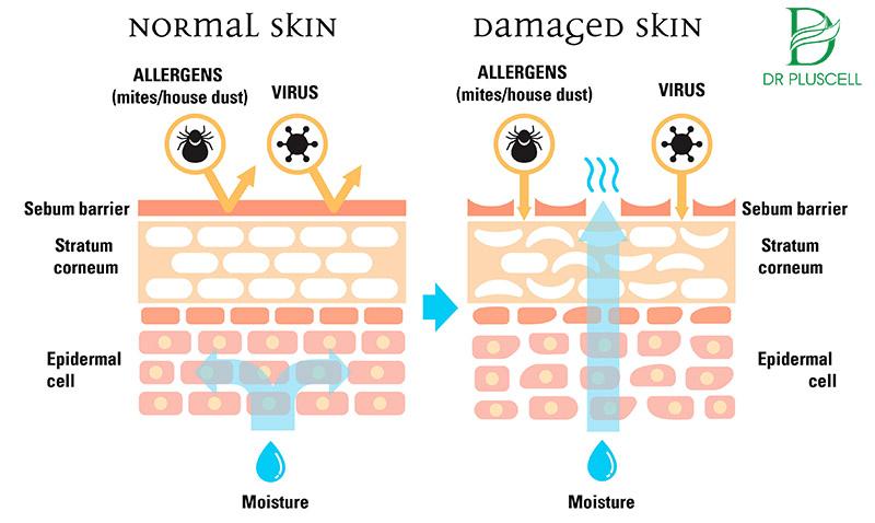 Tăng khả năng miễn dịch cho da