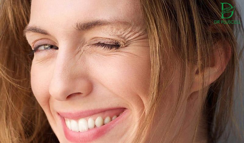 các nếp nhăn xung quanh mũi và miệng