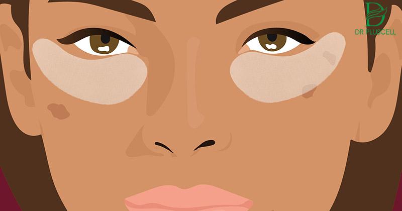 Chăm sóc kỹ vùng da quanh mắt