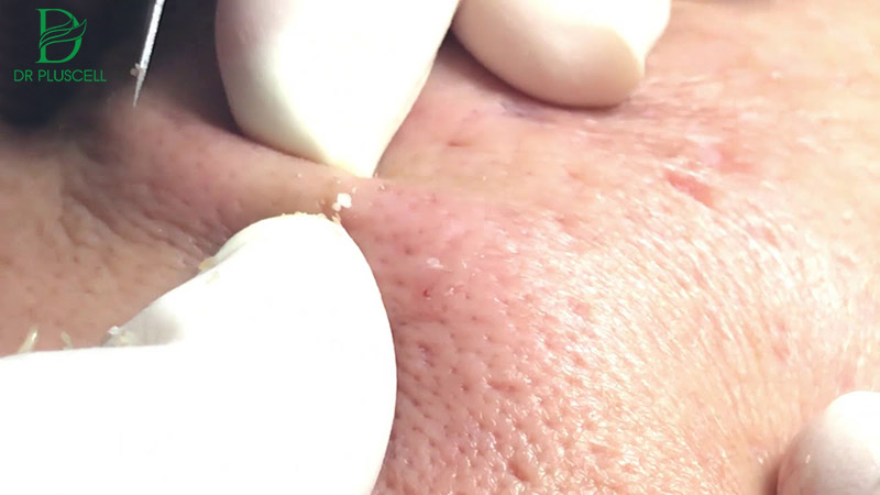 Nặn mụn ẩn dưới da