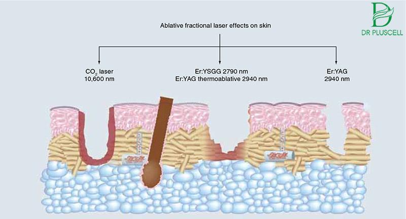 Điều trị sẹo laser