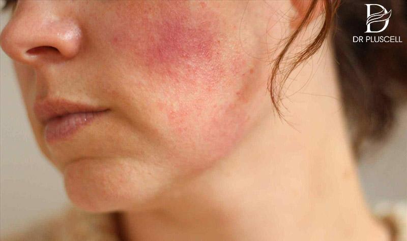 da bị nhiễm Corticoid gây bệnh da liễu