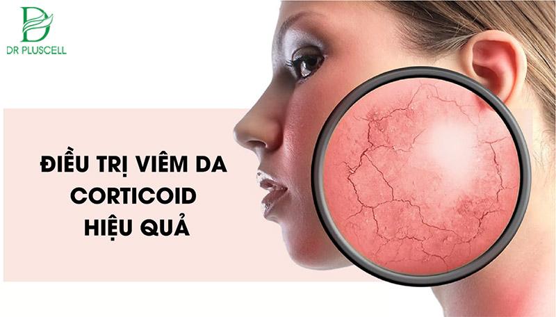 Điều trị da nhiễm Corticoid