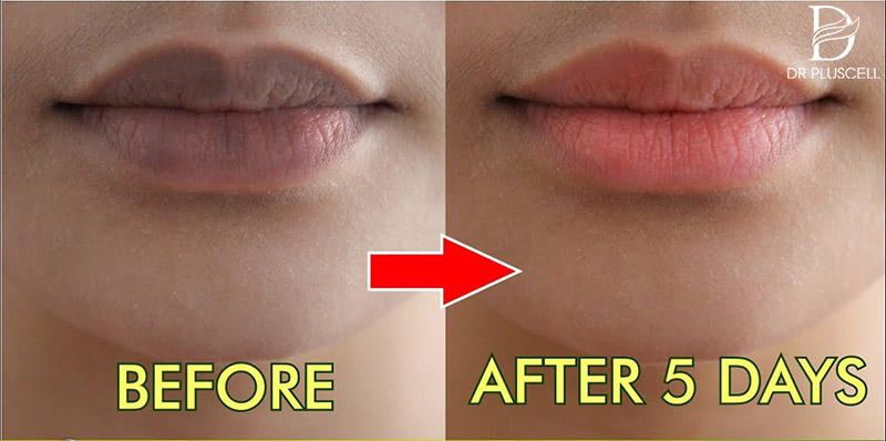 cách trị thâm môi tại nhà