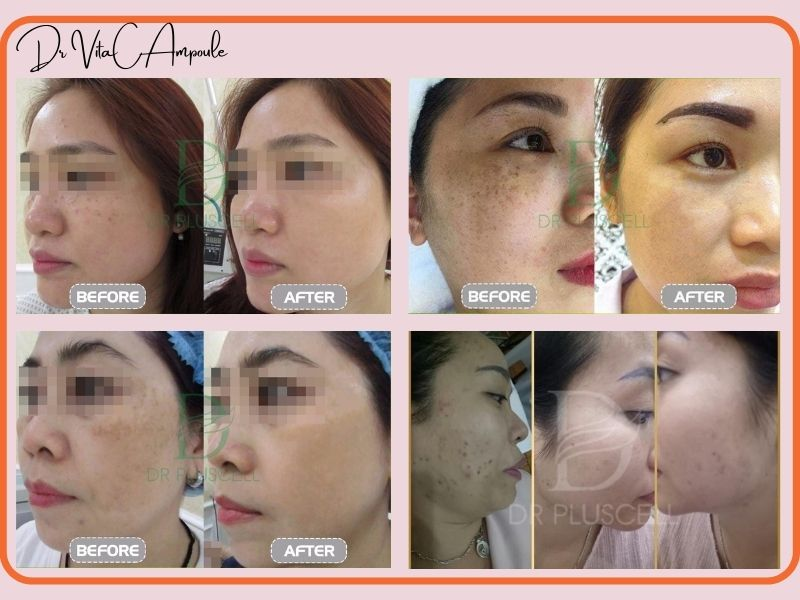 trước và sau khi sử dụng dr vita c trị nám
